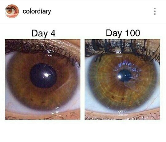 How To Reduce Melanin In Eyes Naturally