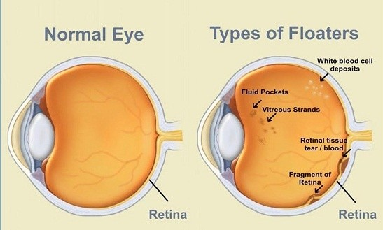 The Floaters Labeled Vitreous Strands Were Formerly Attached To Both Front And Back Of Eye Maintain Its Structure Over Course Time