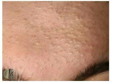 How to Get Rid of Blackheads and Whiteheads Using Commercial Products recommend