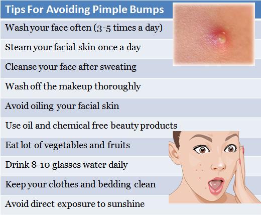How To Keep Acne Off Your Face