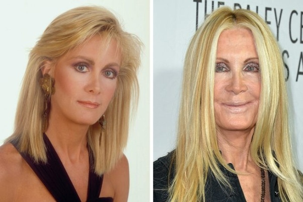 Which Actors Or Actresses Have Had Plastic Surgery Only