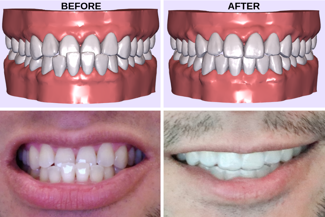 Height In Cm Clear Aligners