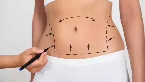 Weight loss surgery southern il image 5