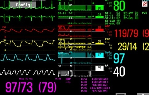 How To Read A Monitor In Icu Quora