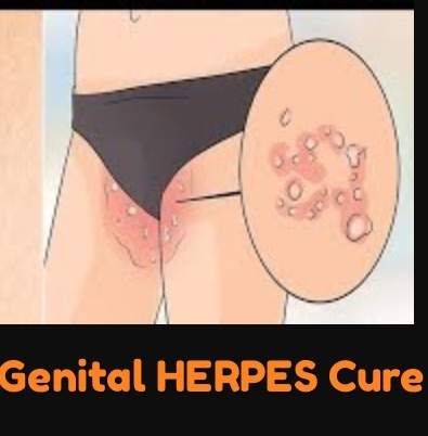 What is genital herpes? Is there a permanent cure for it? - Quora