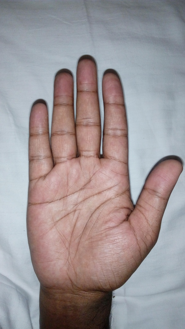 What Is The Significance Of Broken Head Line On Hand Palm Quora