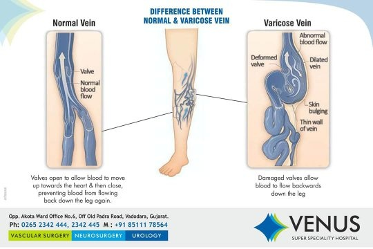 Why do varicose veins happen and how do you treat it? - Quora