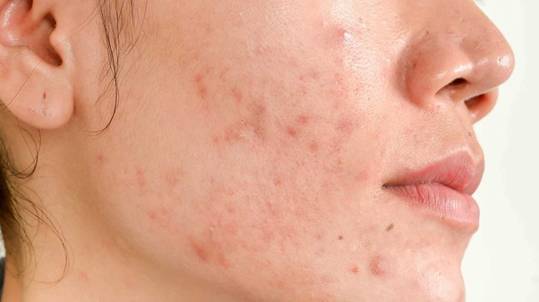 how to get a zit to go away fast