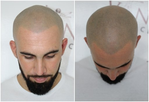 What is the cost of scalp micropigmentation in India? - Quora