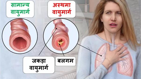 अस्थमा का उपचार क्या है? - Quora