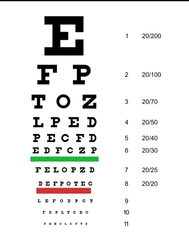 What is 20/25 vision