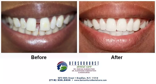 How long should you wear retainers after the braces are removed are you can view all our showcase cases which include teeth straightening patients on our facebook page case of the month for more information about our solutioingenieria Images