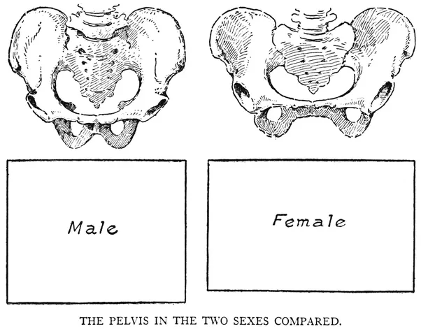 Why don\'t cosmetic surgeons expand the pelvic bone on MtF ...