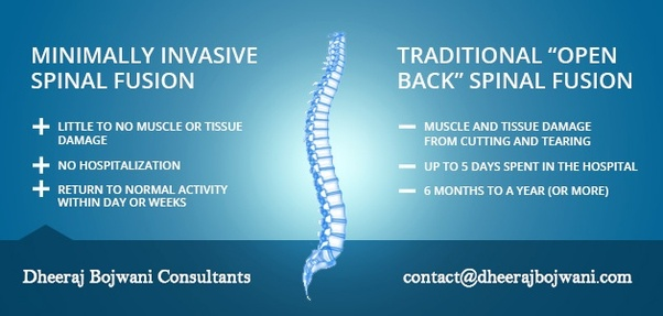 What is spinal fusion surgery? - Quora