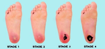 What Are The Home Remedies To Treat Diabetic Foot Pain Quora