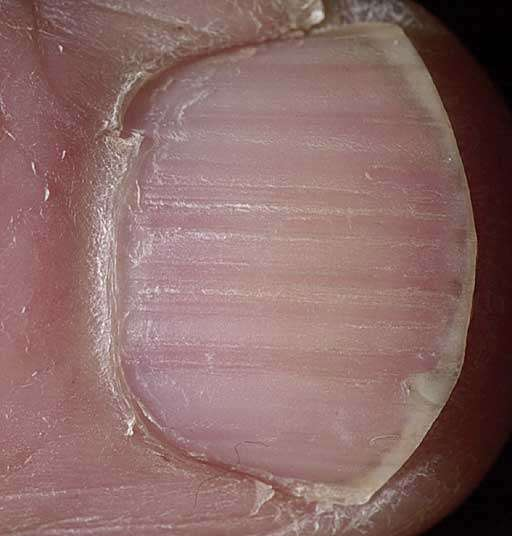 Horizontal Ridges Can Have A Number Of Causes From Picking Or Dermatitis The Surrounding Skin Particularly Proximal Nail Fold To Illnesses