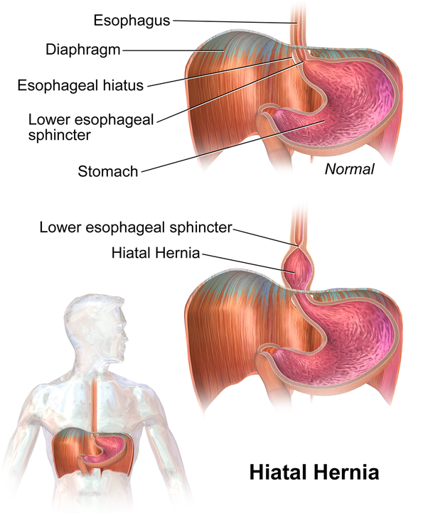 what are the symptoms of a hiatal hernia