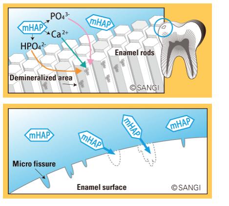 Is hydroxyapatite best option for teeth repair