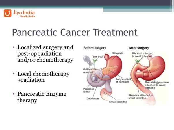 What are the treatments for pancreatic cancer? - Quora
