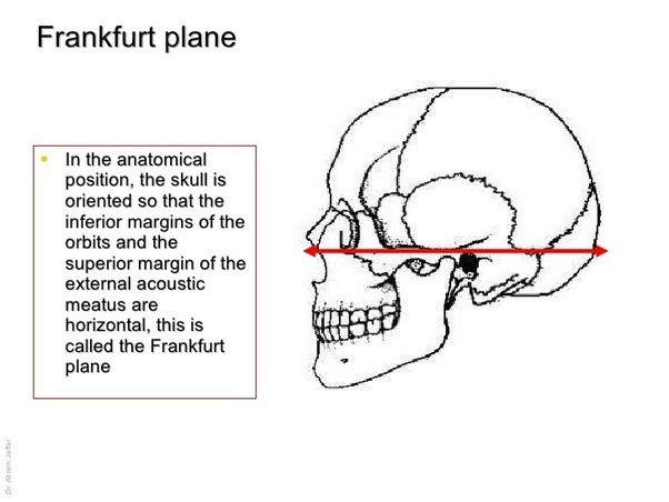 What is the anatomical position of the skull? - Quora