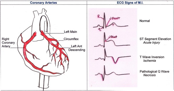 Ecg heart diagram data wiring diagrams my ekg showed a previous heart attack i had two incidents would rh quora com ecg circuit diagram ecg diagram explanation diastole ccuart Image collections