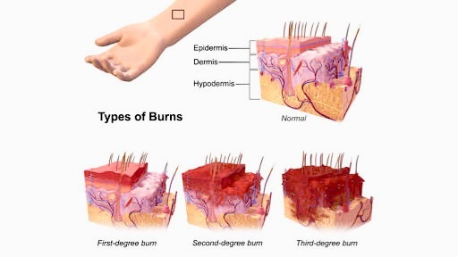 What are the best ways to treat minor first degree kitchen burns