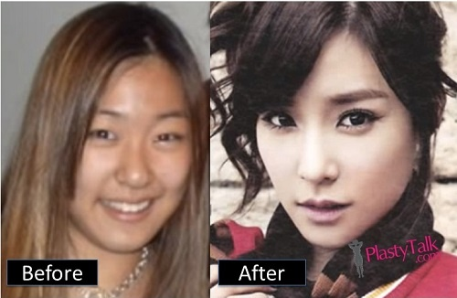 Which K Pop Stars Have Plastic Surgery Quora