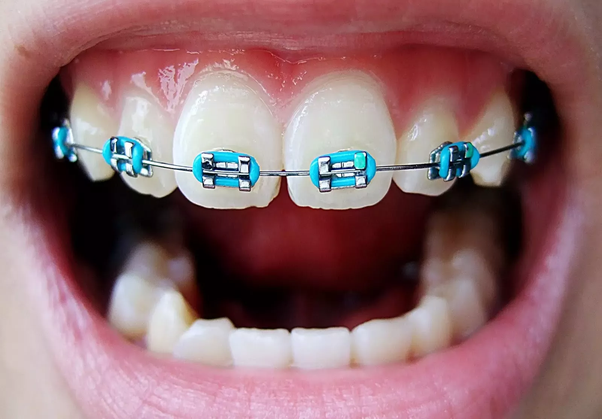 Loose Wire Braces | What Happens If You Have A Loose Tooth With Braces Quora