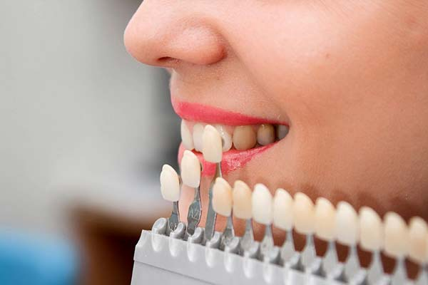 What are the pros and cons of dental veneers? - Quora