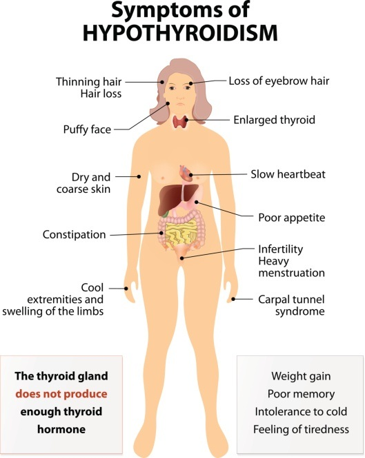 What Are The Symptoms Of Hypothyroidism Quora