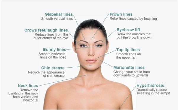 What does botox do for eye wrinkles quora years of squinting can cause fine lines and wrinkles to develop under the eye area adding years to your face and making you appear tired botox solutioingenieria Images