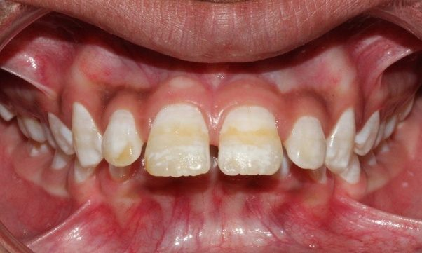 how to fix stained teeth