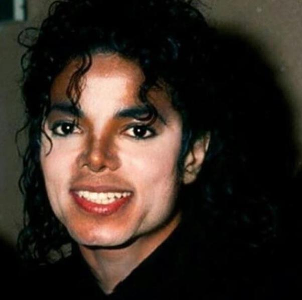Why Did Michael Jackson S Skin Turn White Quora