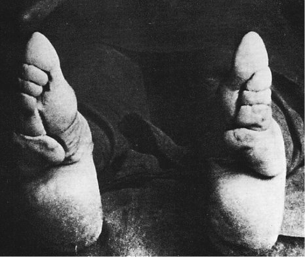 started asian foot binding Who