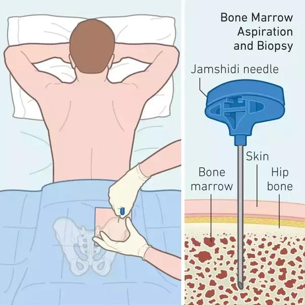What Is a Bone Marrow Biopsy?