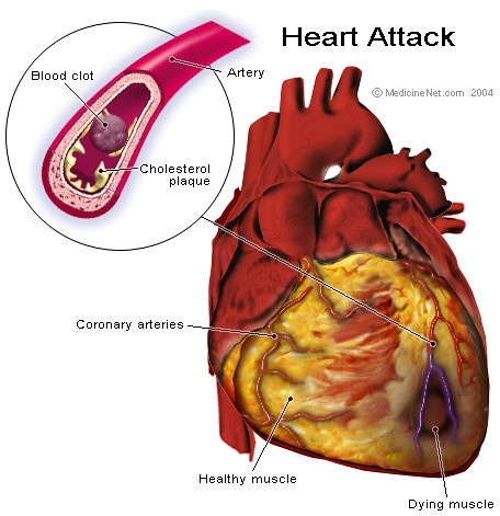 What is the best way to rejuvenate the heart after a heart attack? - Quora