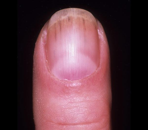 If Its A Brown Or Black Line That Goes All The Way From Cuticle To Edge Called Melanonychia It Could Be Benign Condition Such As Pigmented Nevus