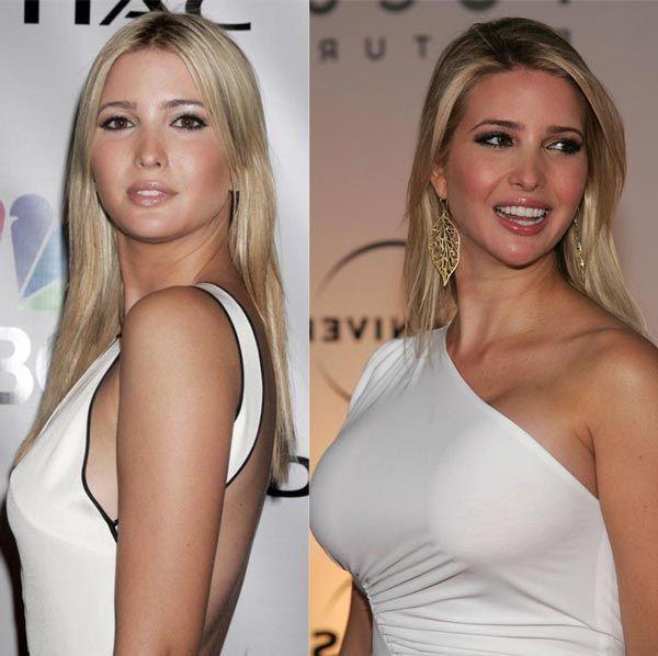 Ivanka Big Tits