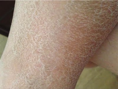 effects of dry skin