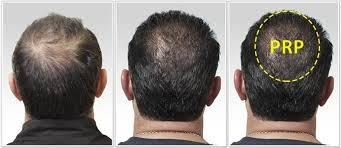 What is the success rate of PRP hair treatment? - Quora