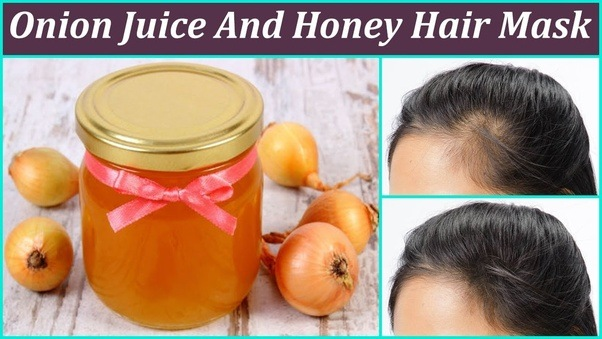 The Mixture Of Onion Juice And Honey Is One Best Home Remes For Thinning Hair Loss Sulfur Content Improves Blood Circulation