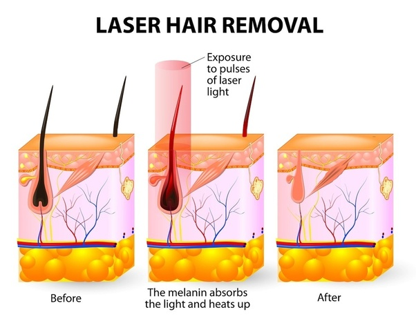How Much Would A Laser Hair Removal Treatment Cost In India Is It Safe What Are The Best Clinics For It Quora