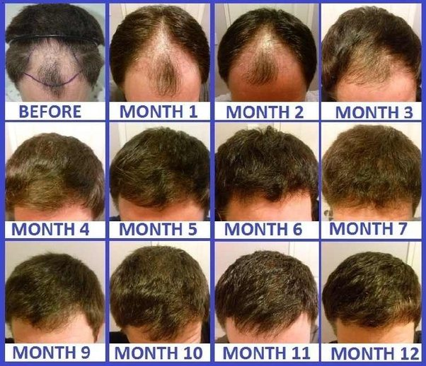 How Fast Does Natural Hair Grow A Month