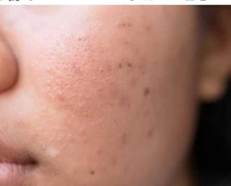 How to treat pitted or indented acne scars - Quora
