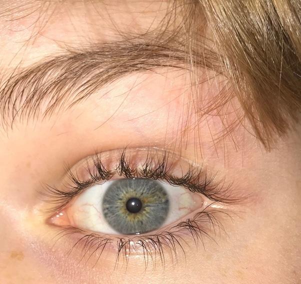 Heterochromia
