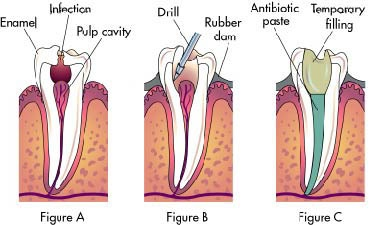 What is the cost of root canal treatment in India? - Quora