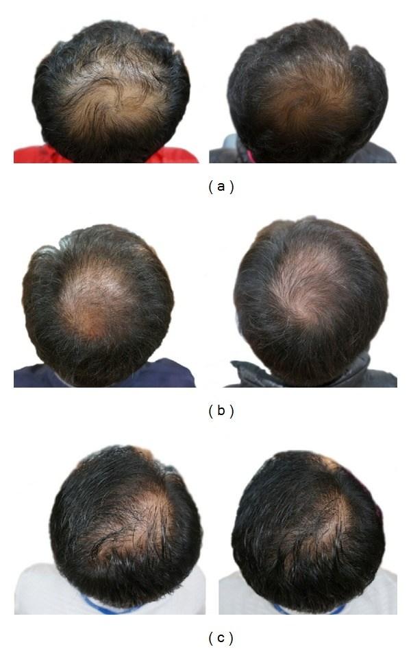 Hair Regrowth Naturally Possible