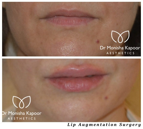 Plastic Surgery: How much do lip augmentations usually cost