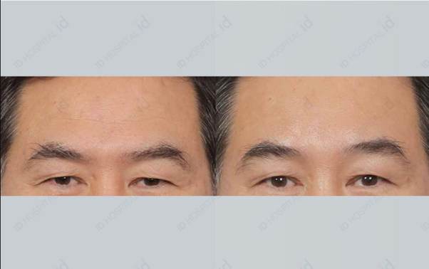 What Is The Best Solution To Forehead Wrinkles Quora
