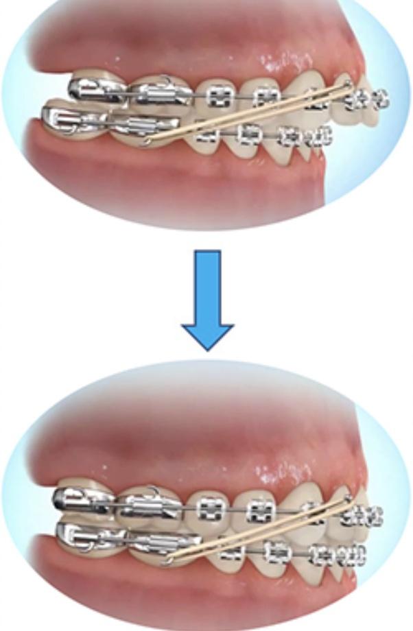 Is it difficult to wearing elastics on braces? I feel like ...